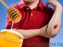 лечение ран медом