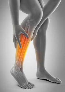 Спазм икроножных мышц - возможные причины